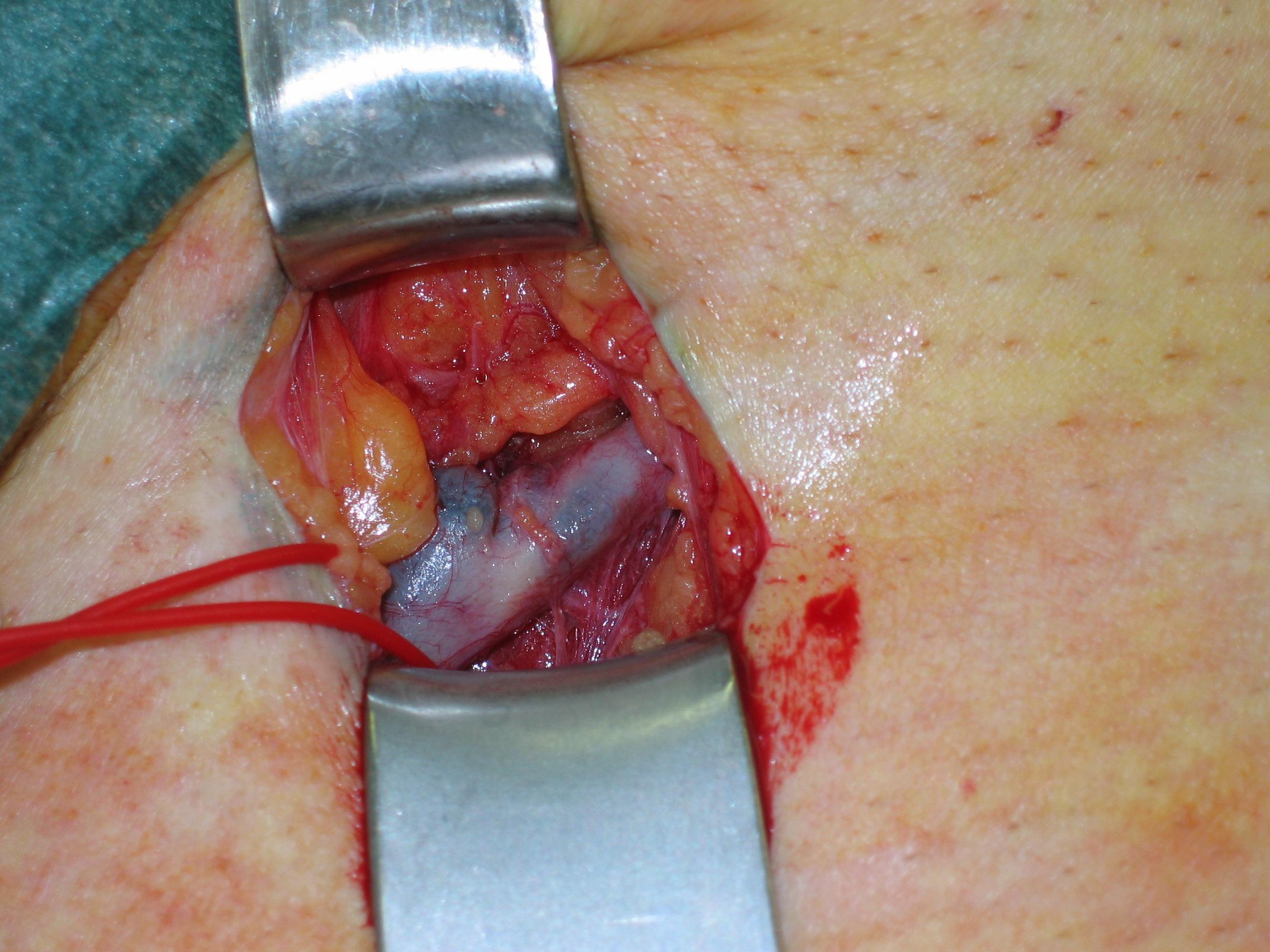 Die Behandlung postinekzionnyj der Thrombophlebitis